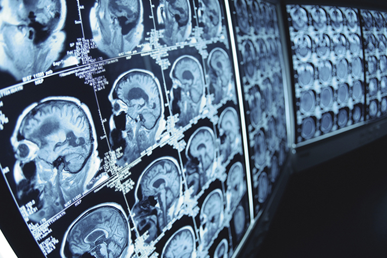 睡眠不足は脳機能を低下させる